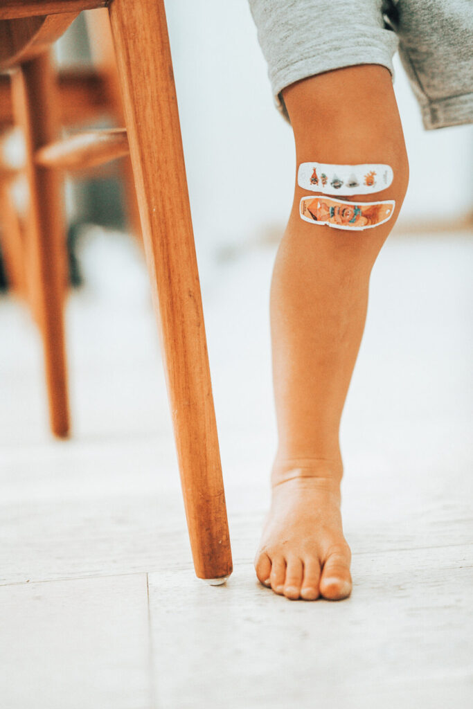 A child's leg with two colorful bandages on their knee
